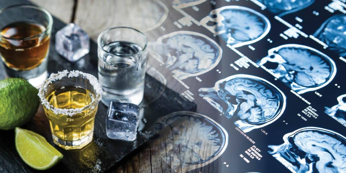shot glasses next to image of brain scans